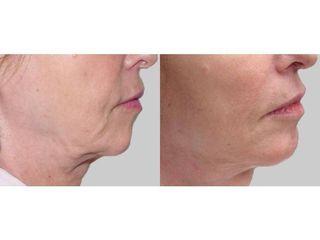 Przed i po: zabieg laserowy, frakcyjne odmłodzenie tkanek