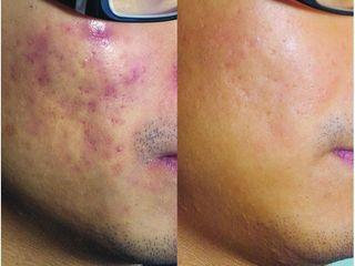 Przed i po: redukcja zmian trądzikowych
