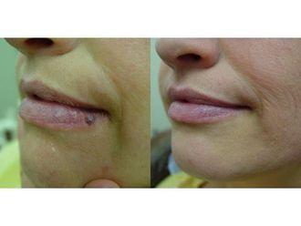 Laserowe zabiegi dermatologii estetycznej-690948