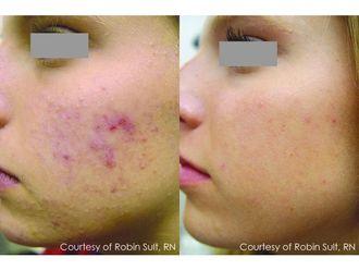 Laserowe zabiegi dermatologii estetycznej-690949