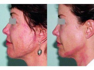 Laserowe zabiegi dermatologii estetycznej-690952