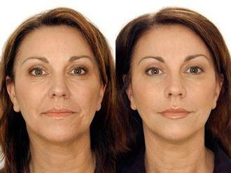 Mezoterapia igłowa - odmładzanie twarzy, szyi, dekoltu, dłoni-656466