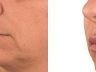 Powiększanie ust własnym tłuszczem-656474