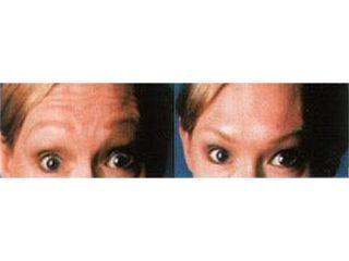 Przed i po - botoks