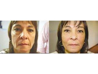 Przed i po - lifting twarzy