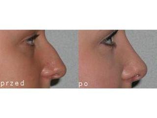 Przed i po - korekta nosa