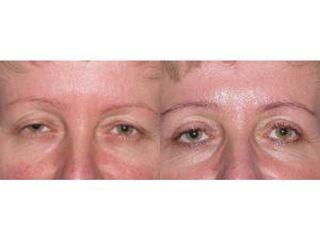 Przed i po -blefaroplastyka