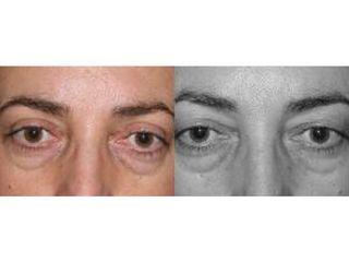 Przed i po - blefaroplastyka