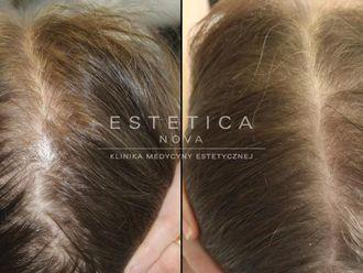 Leczenie wypadania włosów - 656911