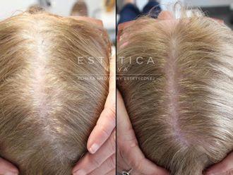 Leczenie wypadania włosów - 656931