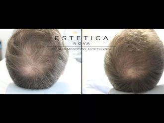 Leczenie wypadania włosów - 656942