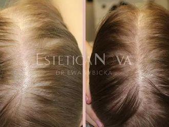 Leczenie wypadania włosów - 656954