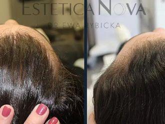 Leczenie wypadania włosów - 656960