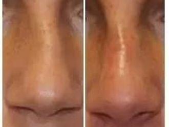 Korekta nosa kwasem hialuronowym - 656969