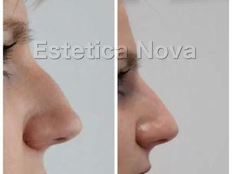 Korekta nosa kwasem hialuronowym-656970