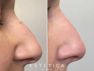 Korekta nosa kwasem hialuronowym-656971