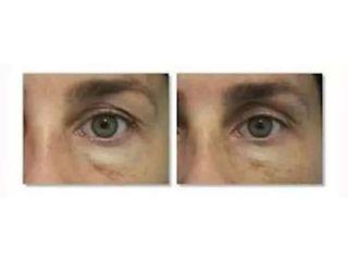 Blefaroplastyka nieinwazyjna Plexr - przed i po