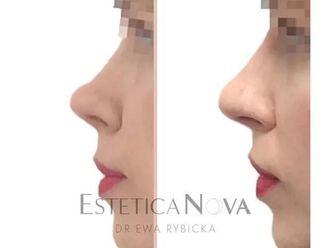 Korekta nosa kwasem hialuronowym - 687489