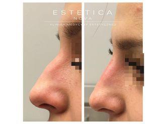 Korekta nosa kwasem hialuronowym - 687490