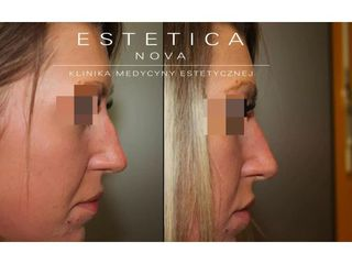 Korekta nosa kwasem hialuronowym - przed i po