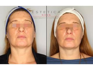 Nieinwazyjny lifting twarzy technologią HIFU - przed i po