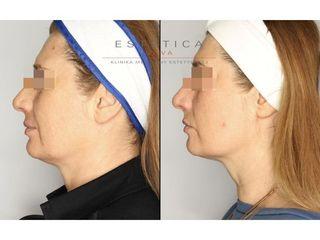 Nieinwazyjny lifting twarzy technologią HIFU i ultraSkin II - przed i po