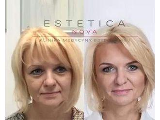 Anti-aging - 687507