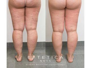 Usuwanie cellulitu - przed i po