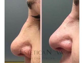 Korekta nosa kwasem hialuronowym - 687525
