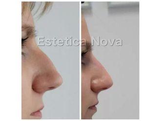 Korekta nosa kwasem hialuronowym - 687533