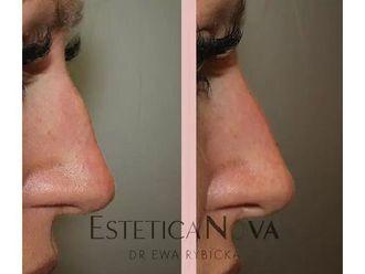 Korekta nosa kwasem hialuronowym - 687534