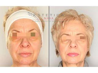 Lifting wiotkiej skóry twarzy technologią HIFU - przed i po