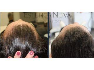 Leczenie łysienia. Zabieg Regenera Activa - przed i po