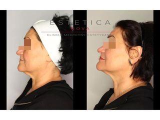 Nieinwazyjny lifting twarzy nićmi APTOS - przed i po
