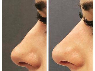 Korekta nosa kwasem hialuronowym-740728