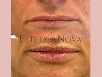 Powiększanie ust kwasem hialuronowym - 740749
