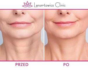 Mezoterapia: przed i po