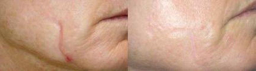Przed i po: usuwanie blizn