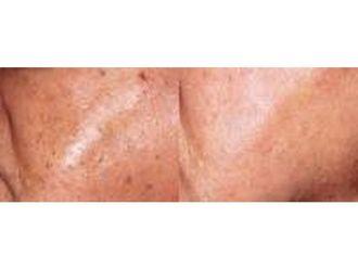 Laserowe usuwanie zmian skórnych - 686265