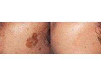 Laserowe usuwanie zmian skórnych - 686267