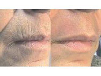 Laserowe zabiegi dermatologii estetycznej-686271