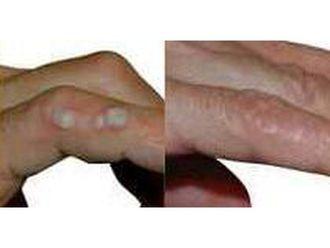 Laserowe usuwanie zmian skórnych - 686282