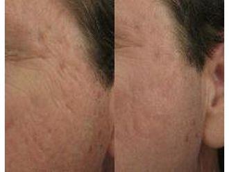 Laserowe zabiegi dermatologii estetycznej-686283