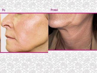 Facelift, Lifting twarzy (podciąganie powłok twarzy)-656237
