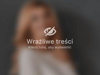 Osocze bogatopłytkowe-658658