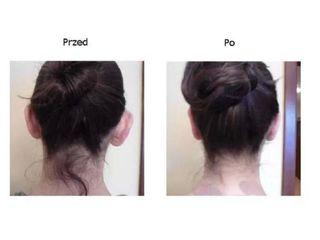 Przed i po - otoplastyka