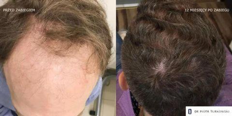 Przeszczep włosów Pan Mateusz