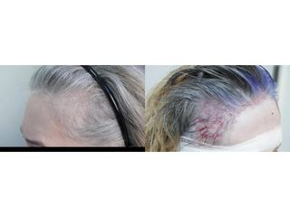 Efekt po przeszczepie metodą FUE: przed i po