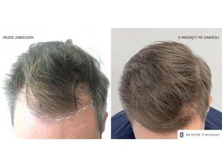 Transplantacja włosów - przed i po