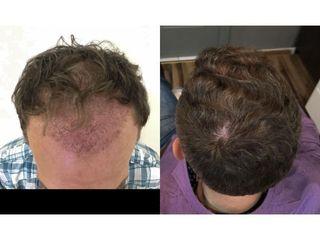 Przeszczep włosów metodą FUE 1700 przeszczepów: przed ipo